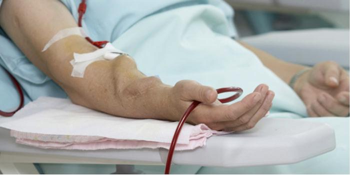 Don't Flog the Fistulas:  Slow Hemodialysis Blood Flow!