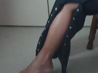 Pants Style #1 - Dialysis thigh treatment